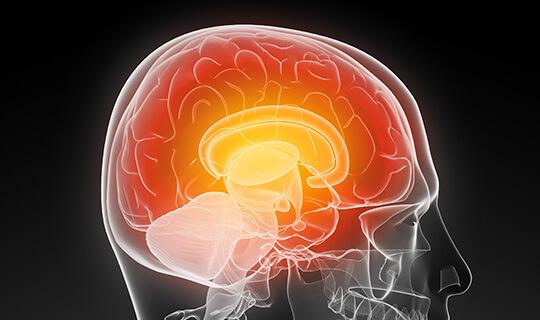 MRI สมอง Brain Bangkok Thailand