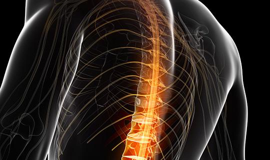 MRI กระดูกสันหลัง
