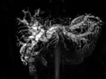 Magnetic Resonance Cholangiopancreatography หรือ MRCP ตรวจ MRI