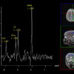 แอบดูกิจกรรมในเซล์สมองด้วย Magnetic Resonance Spectroscopy: MRS