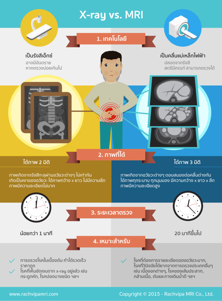 MRI X-RAY vs MRI