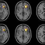 MRI เผยภาพสมองของวัยรุ่นที่มีแนวโน้มฆ่าตัวตาย