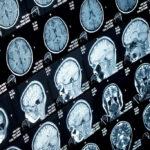 โรคสมองแบบใดควรทำ MRI และโรคใดควรทำ CT scan
